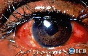 Federal authorities warn against dangers of decorative contact lenses